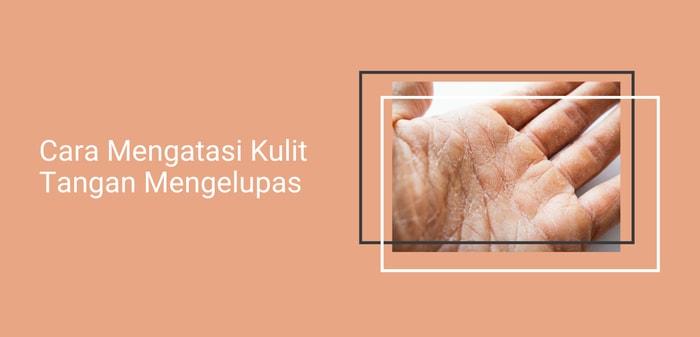 cara mengatasi kulit tangan mengelupas